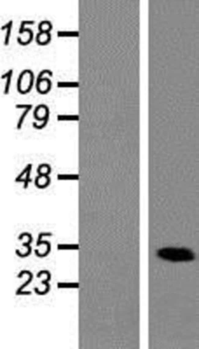 Novus Biologicals Heterogeneous Nuclear Ribonucleoprotein (A1-like) Overexpression