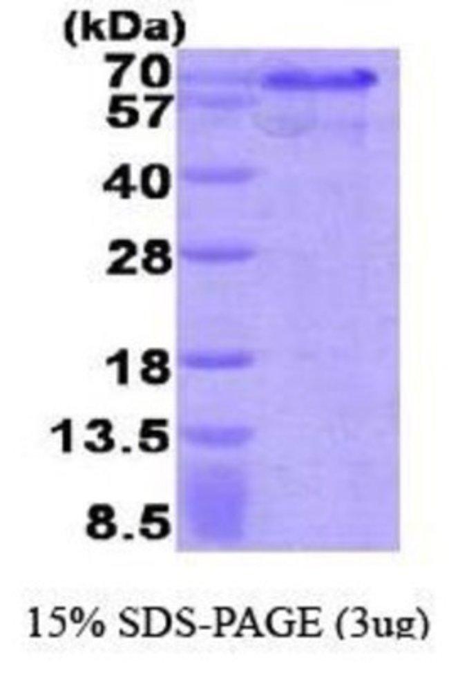 Novus Biologicals Human Hexim 1 Protein 0.1mg; Unlabeled:Life Sciences