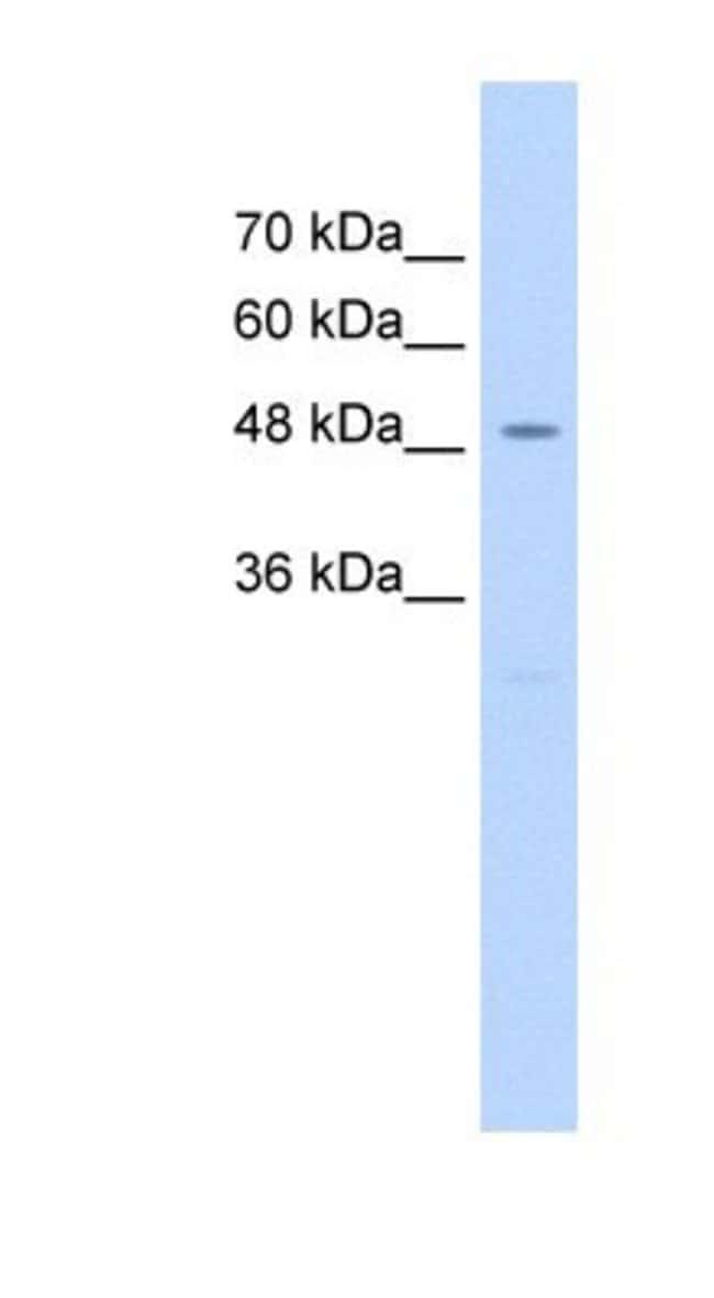 hHR23A Rabbit anti-Human, Polyclonal, Novus Biologicals 100µL; Unlabeled:Life