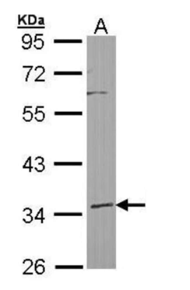 anti-HIBCH, Polyclonal, Novus Biologicals 100 ul; Unconjugated:Life Sciences