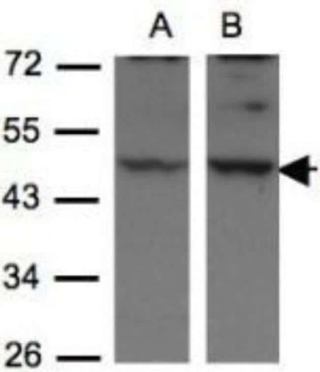 anti-HIP-55, Polyclonal, Novus Biologicals 0.1mg; Unlabeled:Life Sciences