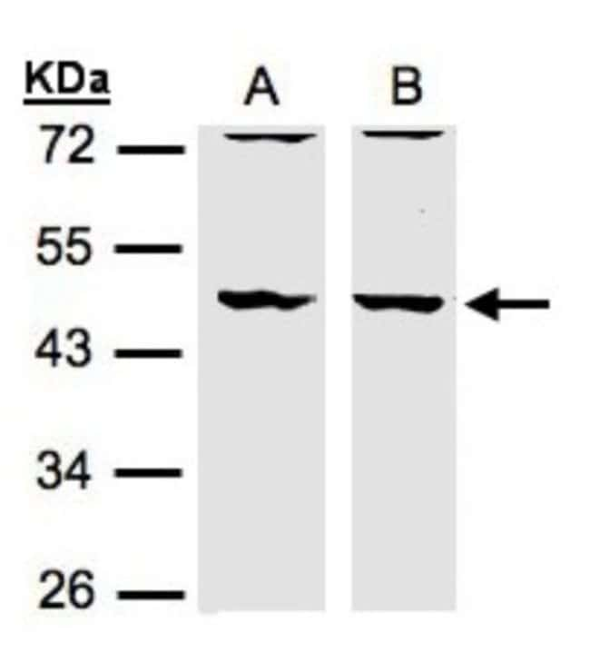 anti-HIP-55, Polyclonal, Novus Biologicals 0.1mg; Unlabeled:Antibodies