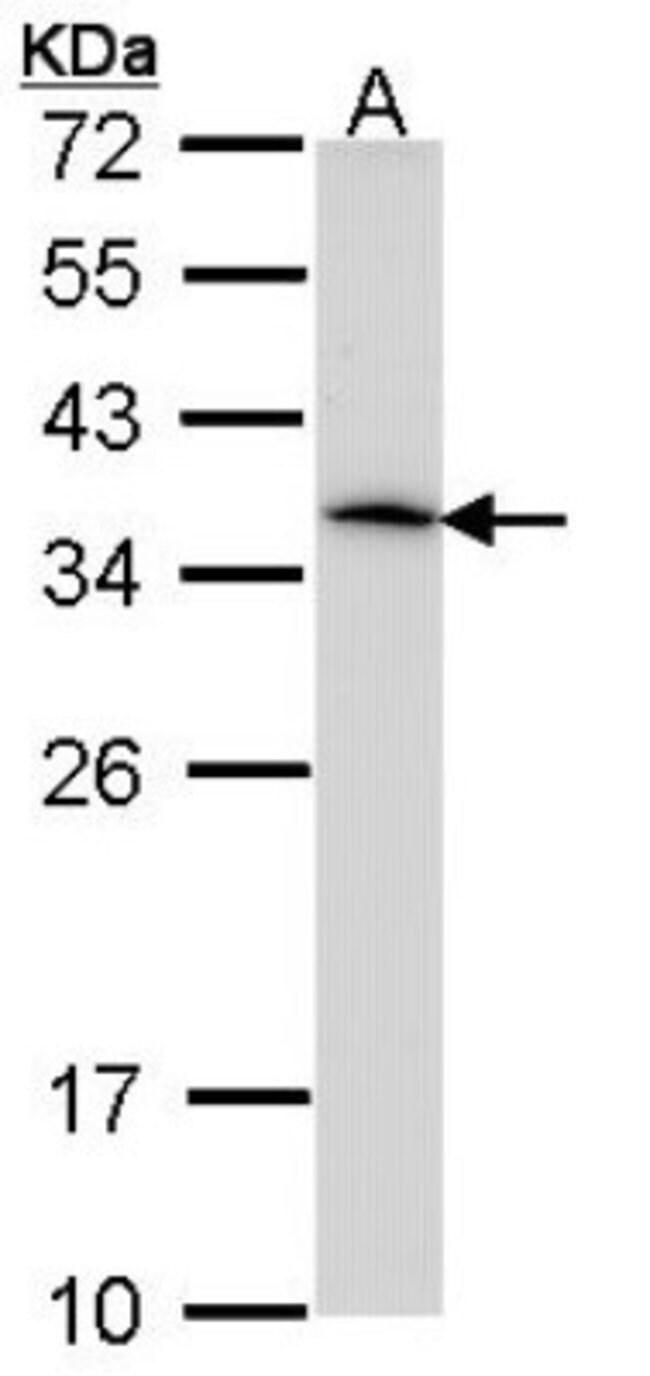 anti-HLA DRA, Polyclonal, Novus Biologicals 0.1mL; Unlabeled:Life Sciences