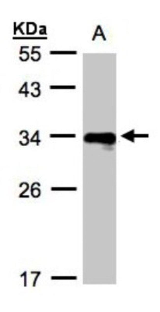 anti-HLA DRB4, Polyclonal, Novus Biologicals 0.1mg; Unlabeled:Life Sciences