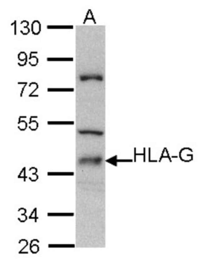 anti-HLA G, Polyclonal, Novus Biologicals 0.1mL; Unlabeled:Life Sciences
