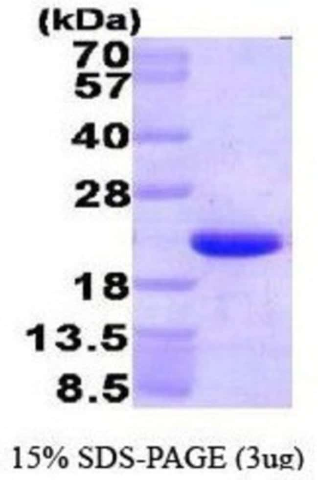 Novus Biologicals Human HMGN1/HMG14 Recombinant Protein 0.05mg:Life Sciences