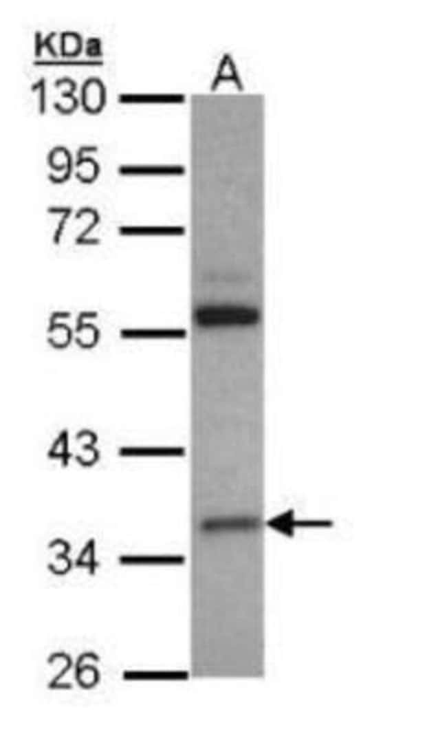 anti-HMGCL, Polyclonal, Novus Biologicals 0.1mg; Unlabeled:Life Sciences