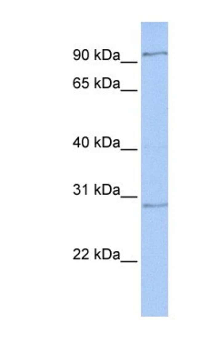 HMX2 Rabbit anti-Human, Polyclonal, Novus Biologicals 100µL; Unlabeled:Life