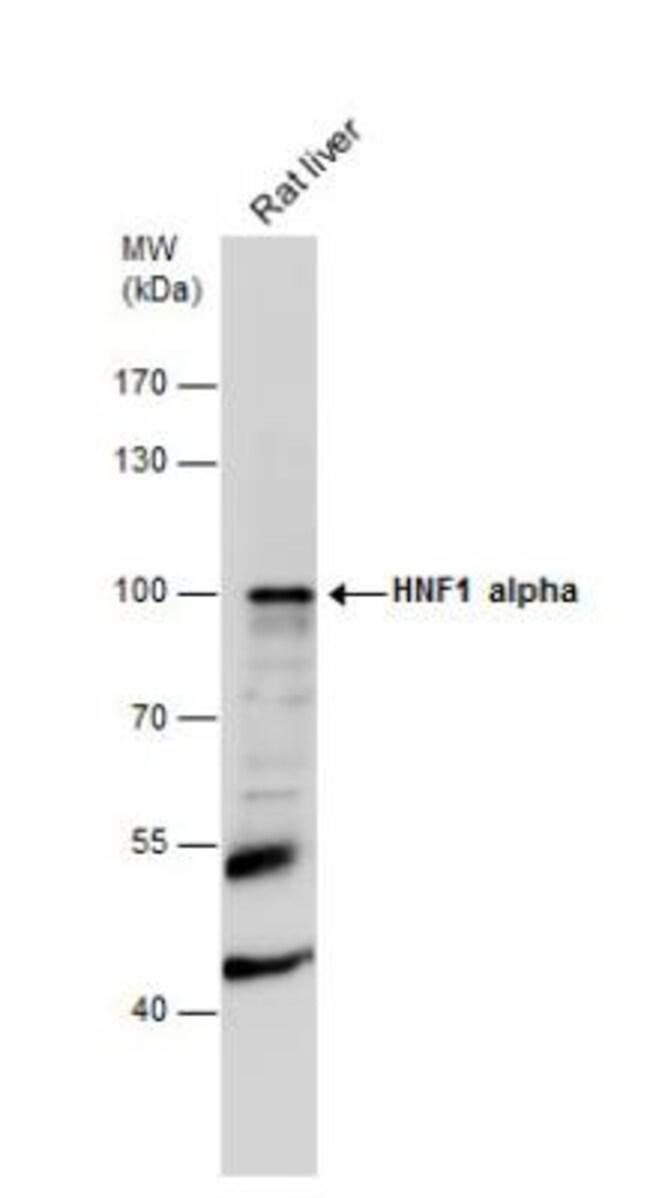 anti-HNF1, Polyclonal, Novus Biologicals 0.1mg; Unlabeled:Antibodies