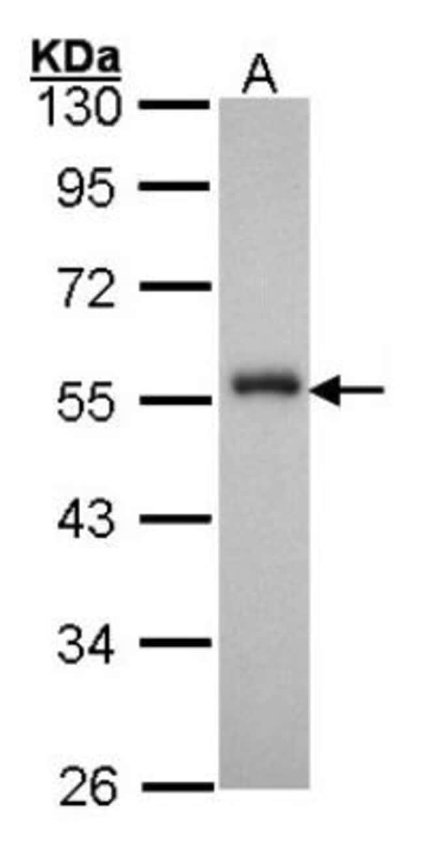 anti-HNF-3 alpha/FoxA1, Polyclonal, Novus Biologicals 0.1mg; Unlabeled:Antibodies