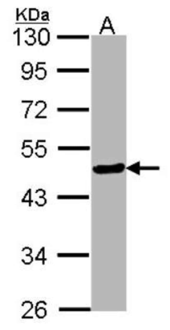 anti-HNF-3 beta/FoxA2, Polyclonal, Novus Biologicals 0.1mg; Unlabeled:Life