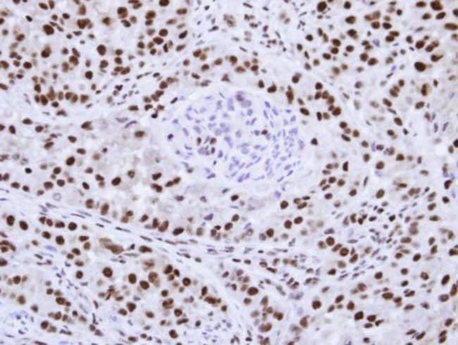 anti-hnRNP F, Polyclonal, Novus Biologicals 0.1mL; Unlabeled:Life Sciences