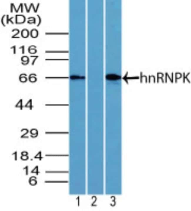 anti-hnRNP K, Polyclonal, Novus Biologicals:Antibodies:Primary Antibodies
