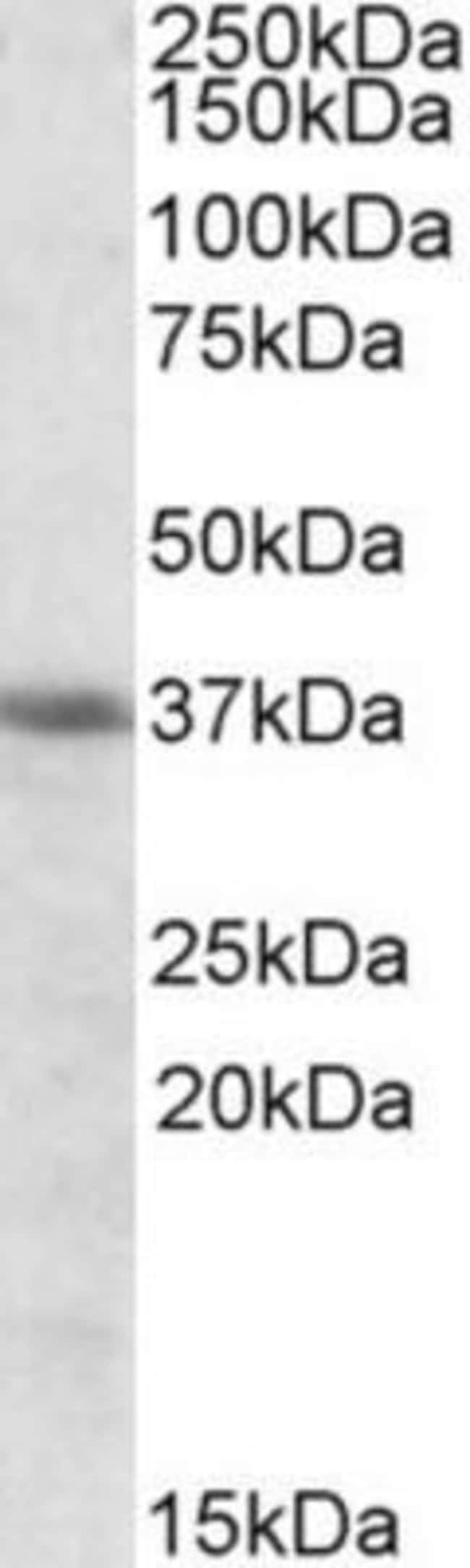 anti-HO-2/HMOX2, Polyclonal, Novus Biologicals 0.1mg; Unlabeled:Life Sciences
