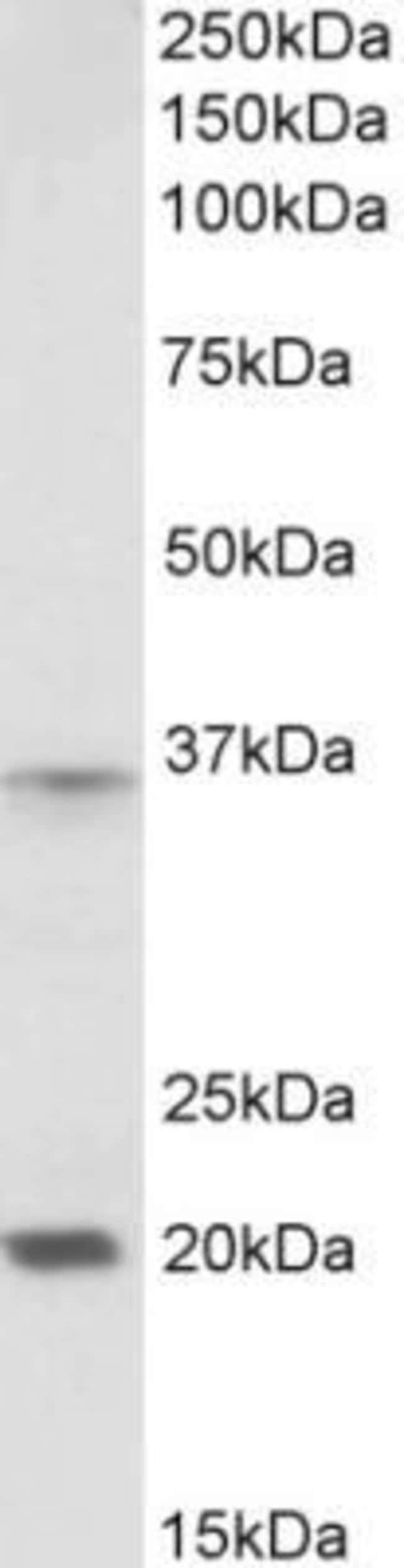 anti-HOXA9, Polyclonal, Novus Biologicals 0.1mg; Unlabeled