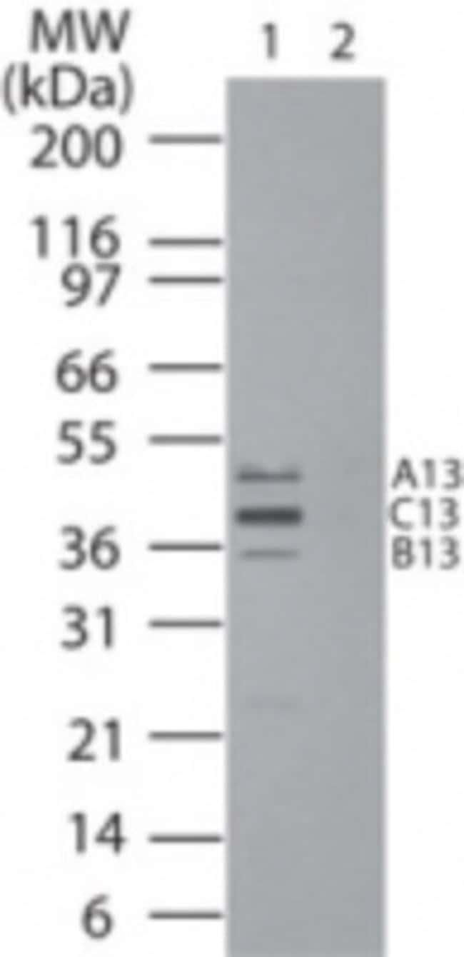 anti-HOXB13, Polyclonal, Novus Biologicals:Antibodies:Primary Antibodies