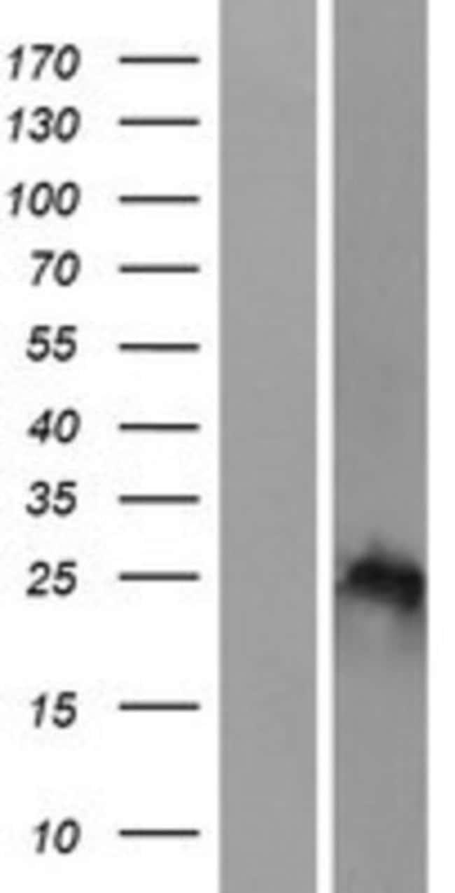 Novus Biologicals HOXB7 Overexpression Lysate (Native) 0.1mg:Life Sciences