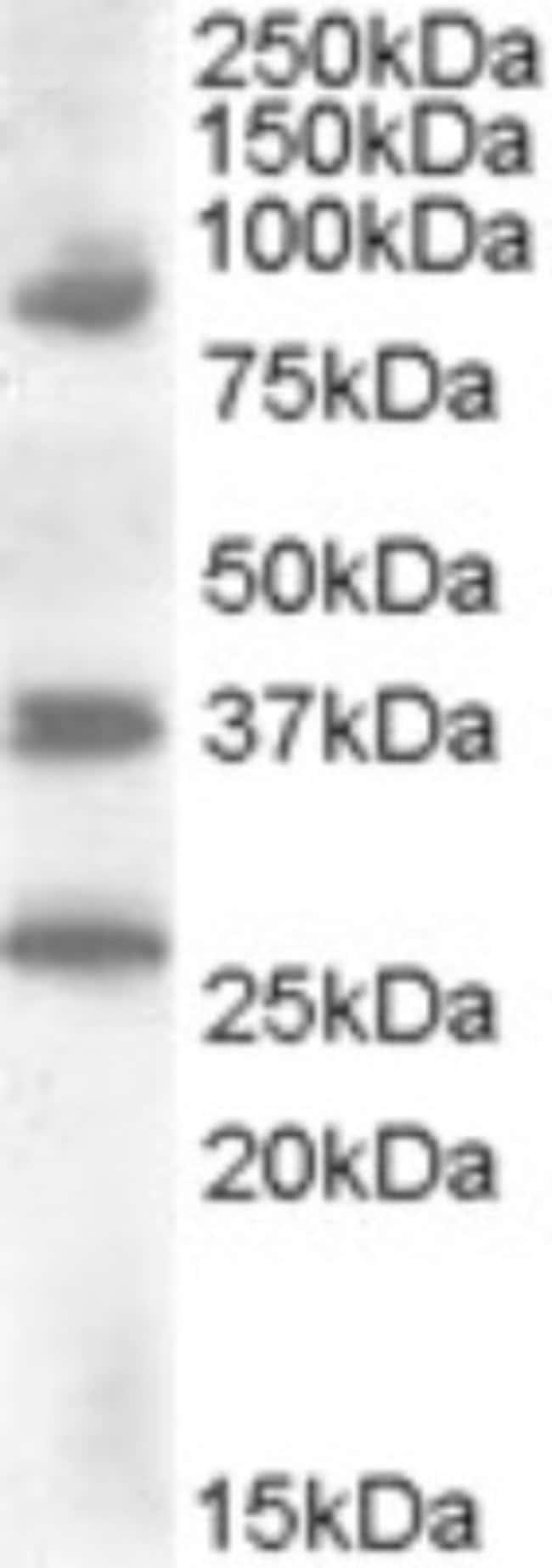 anti-HOXD10, Polyclonal, Novus Biologicals 0.1mg; Unlabeled:Life Sciences