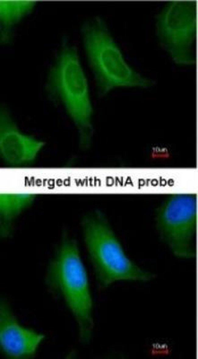 anti-HPCL, Polyclonal, Novus Biologicals 0.1mg; Unlabeled:Life Sciences