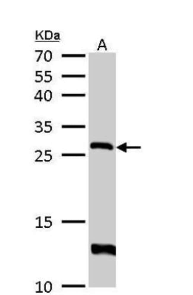 anti-HPRT, Polyclonal, Novus Biologicals 0.1mL; Unlabeled:Life Sciences