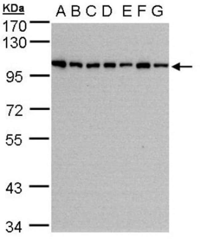 anti-HPS3, Polyclonal, Novus Biologicals 0.1mL; Unlabeled:Antibodies