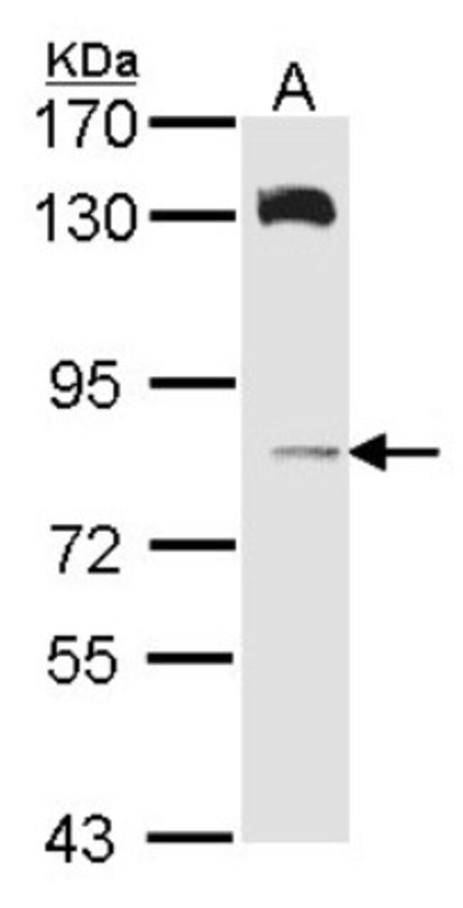 anti-HPS6, Polyclonal, Novus Biologicals 0.1mg; Unlabeled:Life Sciences