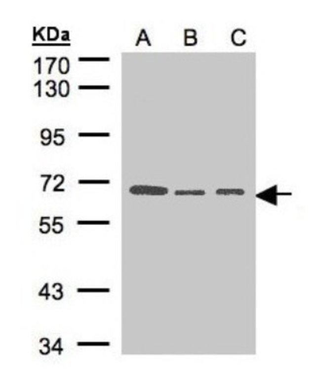 anti-HPSE2, Polyclonal, Novus Biologicals 0.1mg; Unlabeled:Life Sciences
