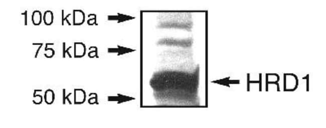 anti-HRD1, Polyclonal, Novus Biologicals:Antibodies:Primary Antibodies
