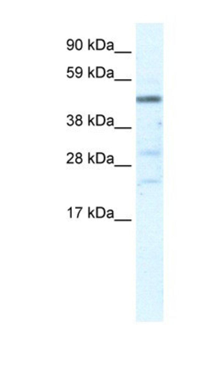 HSFY1 Rabbit anti-Human, Polyclonal, Novus Biologicals 20µL; Unlabeled