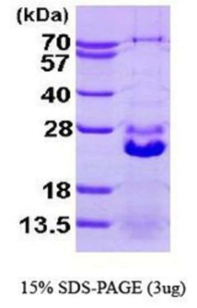 Novus Biologicals Human HspB7 Protein 0.05mg; Unlabeled:Life Sciences
