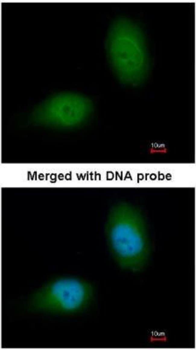anti-HSPB8/HSP22, Polyclonal, Novus Biologicals 0.1mg; Unlabeled:Life Sciences