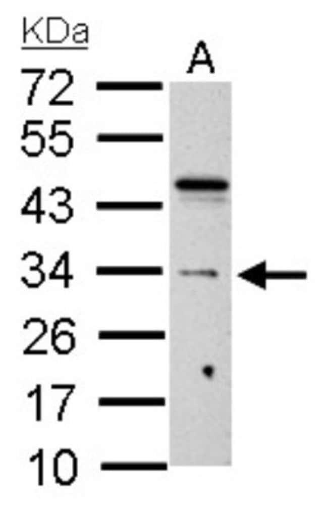 anti-HUS1, Polyclonal, Novus Biologicals 0.1mL; Unlabeled:Antibodies