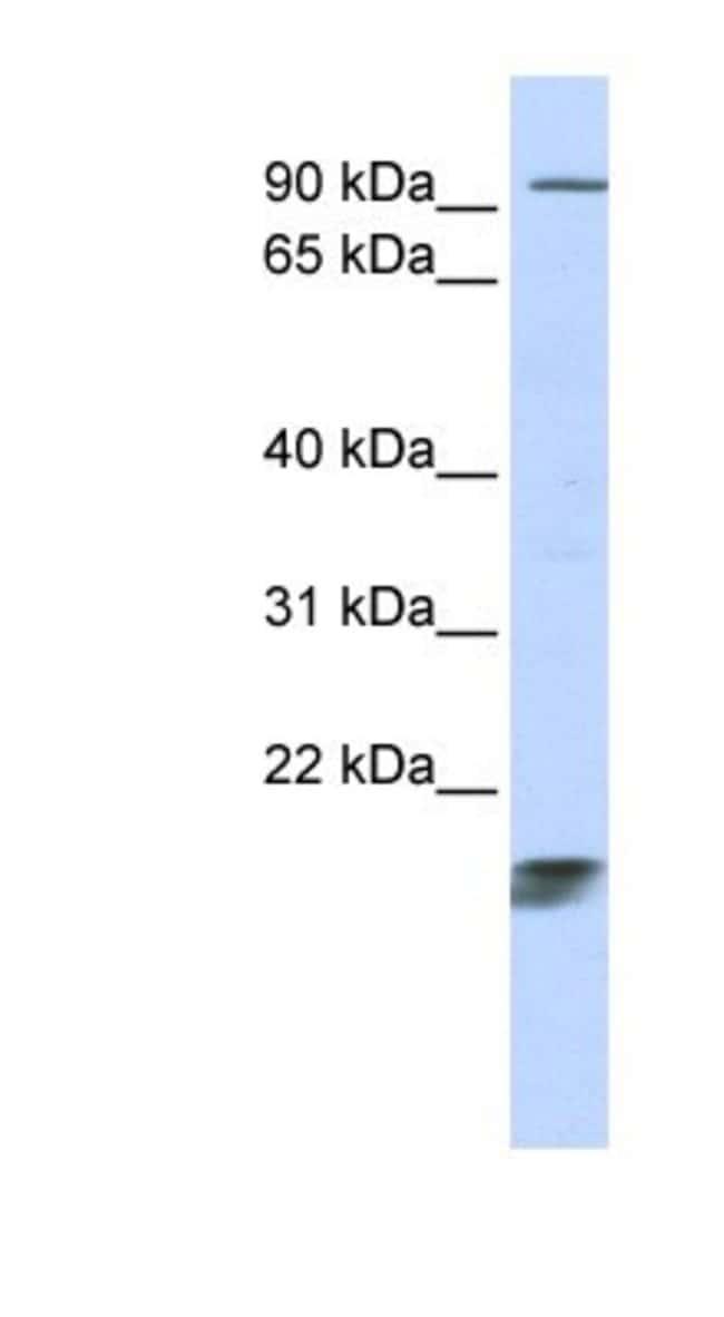 ICT Rabbit anti-Human, Polyclonal, Novus Biologicals 20µL; Unlabeled