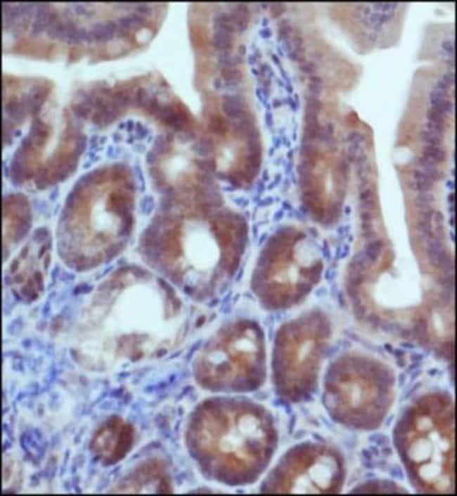 anti-IDH2, Polyclonal, Novus Biologicals:Antibodies:Primary Antibodies