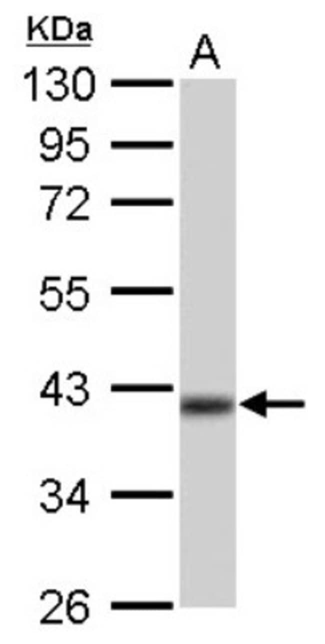 anti-IDH3A, Polyclonal, Novus Biologicals 0.1mL; Unlabeled:Antibodies