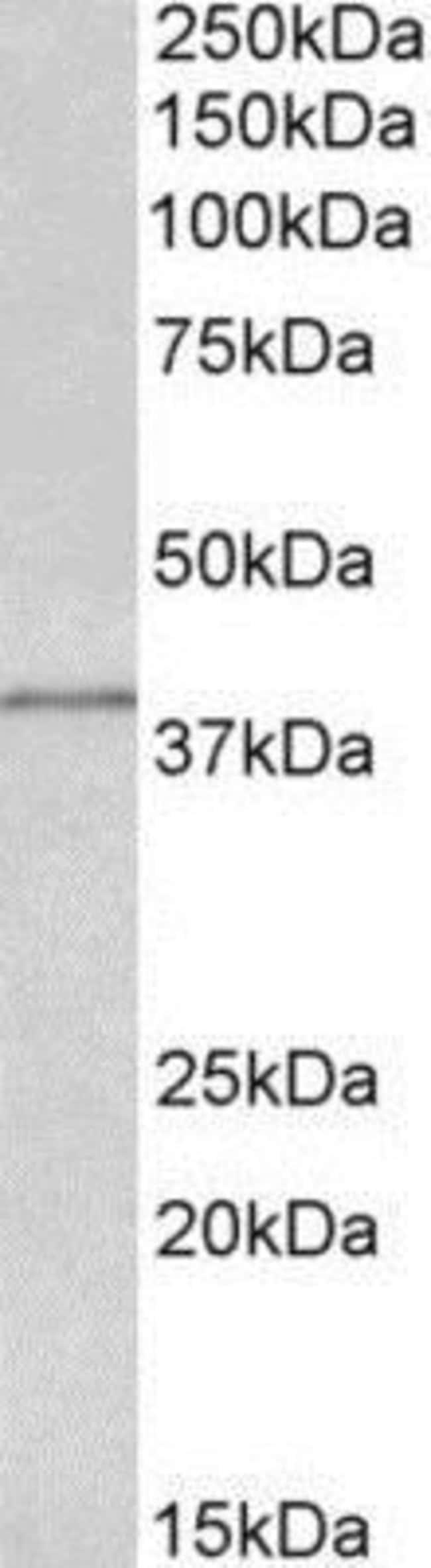 anti-IDH3G, Polyclonal, Novus Biologicals 0.1mg; Unlabeled:Life Sciences