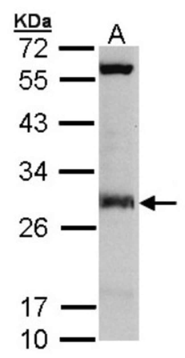 anti-IDI1, Polyclonal, Novus Biologicals 0.1mL; Unlabeled:Life Sciences