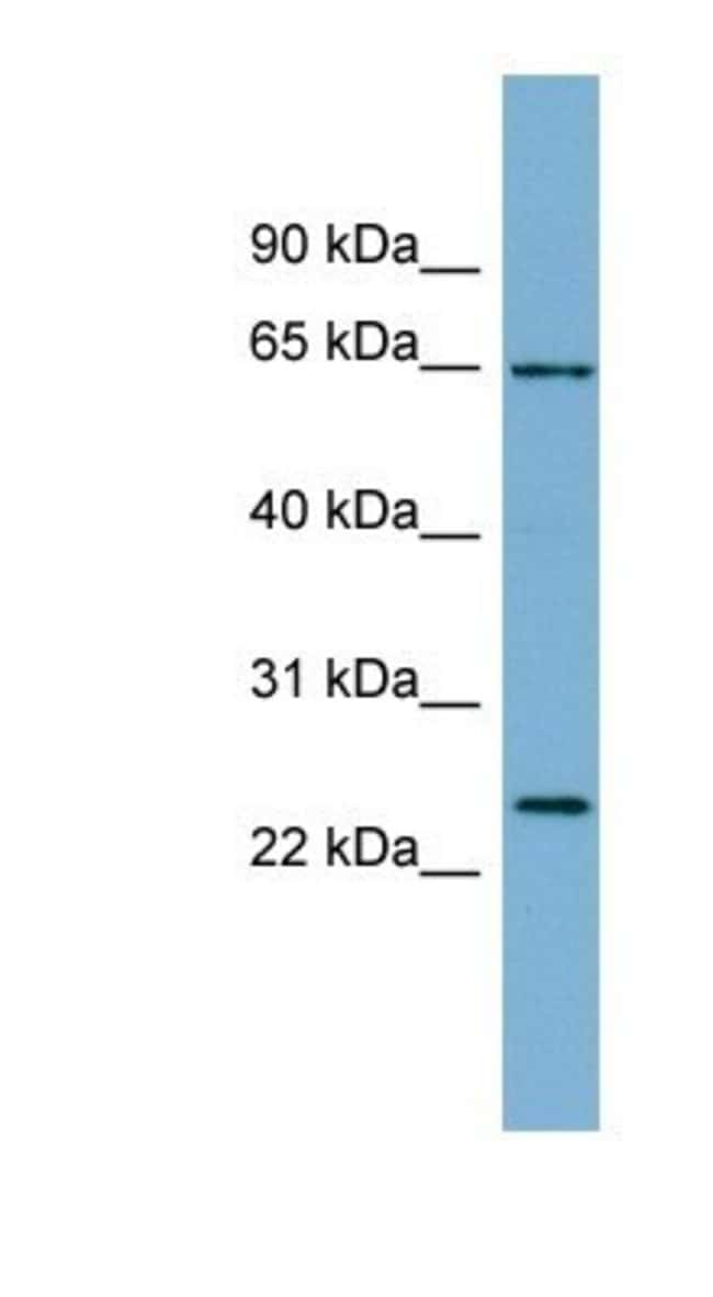 IFFO Rabbit anti-Human, Polyclonal, Novus Biologicals 20µL; Unlabeled