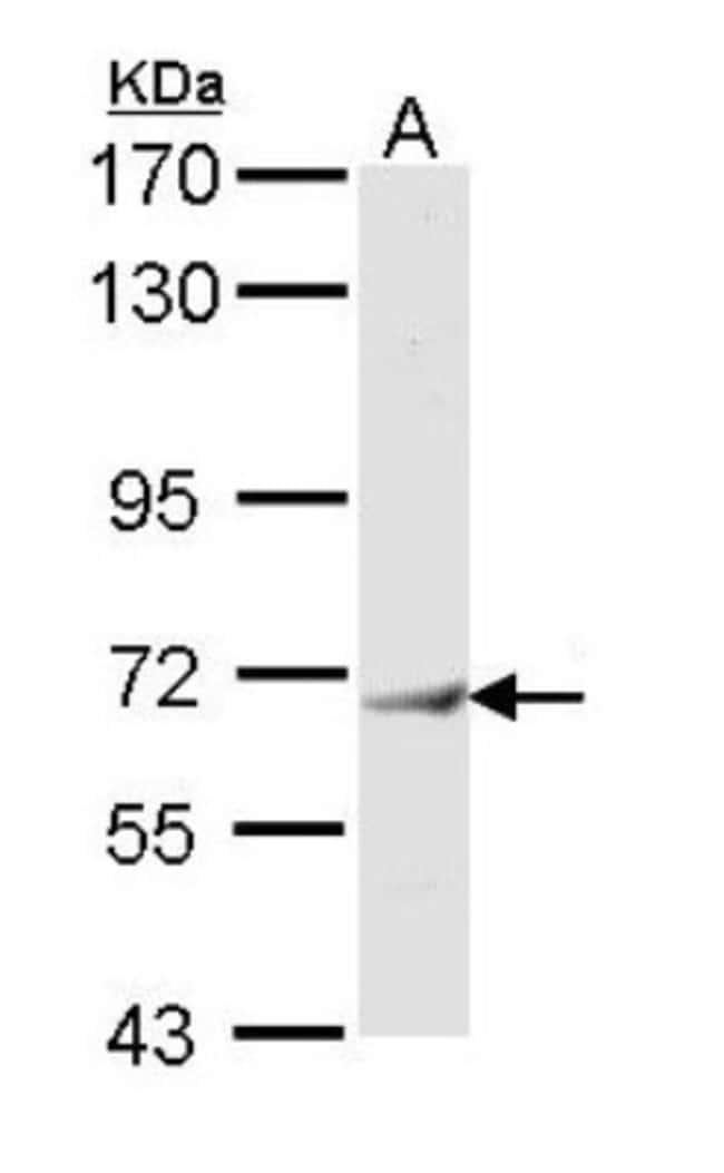 anti-IFIT3, Polyclonal, Novus Biologicals 0.1mg; Unlabeled:Antibodies