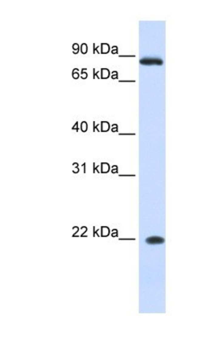 IFN-alpha J1/IFNA7 Rabbit anti-Human, Polyclonal, Novus Biologicals 20µL;
