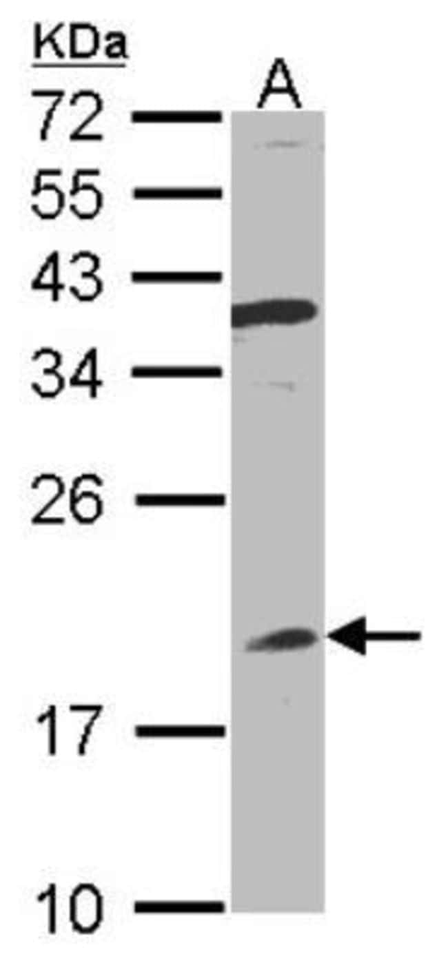 anti-IFN-alpha B2/IFN-alpha 8, Polyclonal, Novus Biologicals 0.1mg; Unlabeled:Antibodies