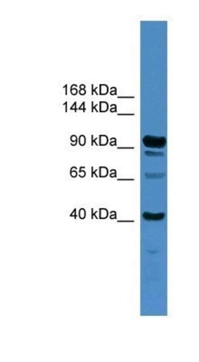 IFT88 Rabbit anti-Human, Polyclonal, Novus Biologicals 100µL; Unlabeled:Life