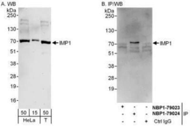 anti-IGF2BP1, Polyclonal, Novus Biologicals 0.1mg; Unlabeled:Life Sciences