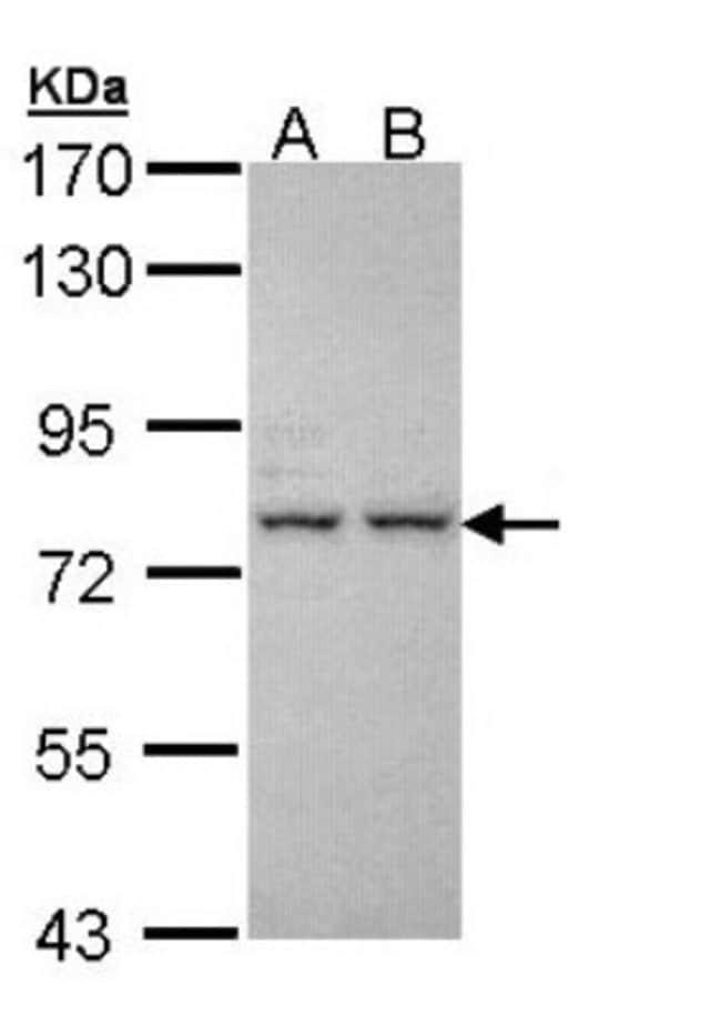 anti-IGFALS, Polyclonal, Novus Biologicals 0.1mL; Unlabeled:Life Sciences