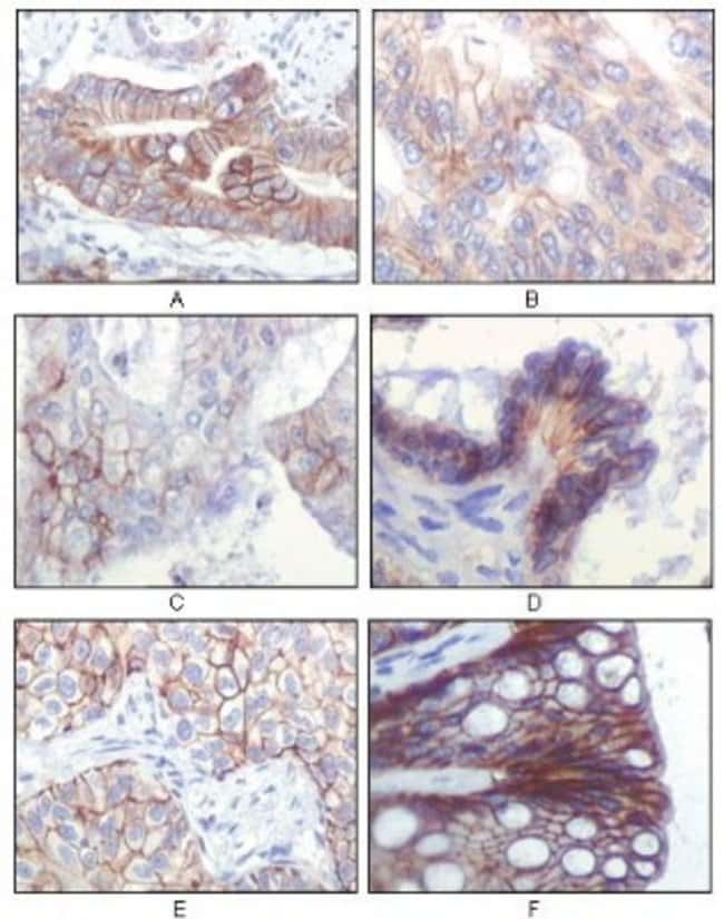 IGF-I R/IGF1R Mouse anti-Human, Clone: 3C8B1, Novus Biologicals 0.1mL;