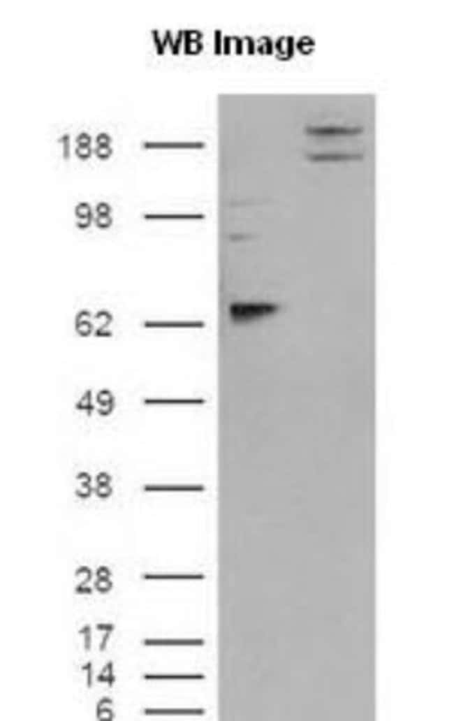 anti-IGSF4A/SynCAM1/CADM1, Polyclonal, Novus Biologicals:Antibodies:Primary