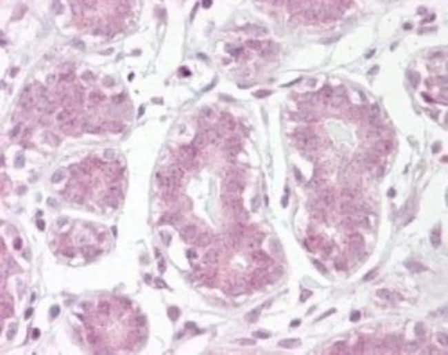 anti-IkB-alpha, Polyclonal, Novus Biologicals:Antibodies:Primary Antibodies