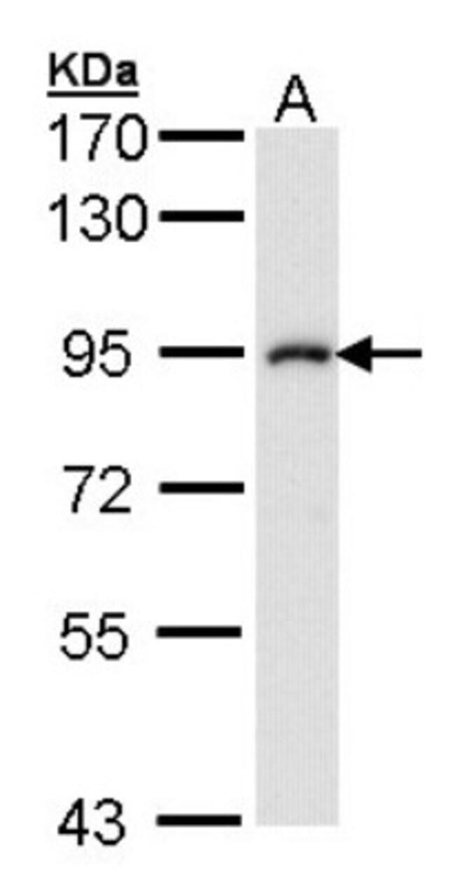 anti-IKK beta, Polyclonal, Novus Biologicals 0.1mL; Unlabeled:Antibodies