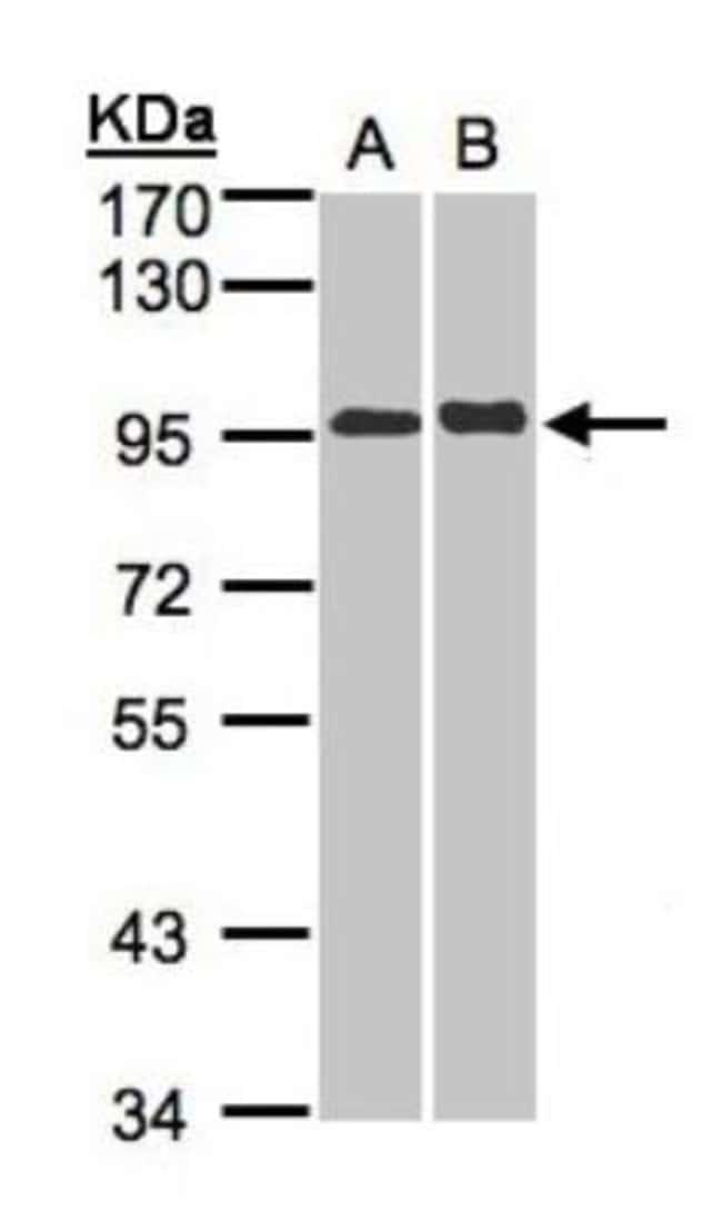 anti-IL-12 R beta 2, Polyclonal, Novus Biologicals 0.1mg; Unlabeled:Life