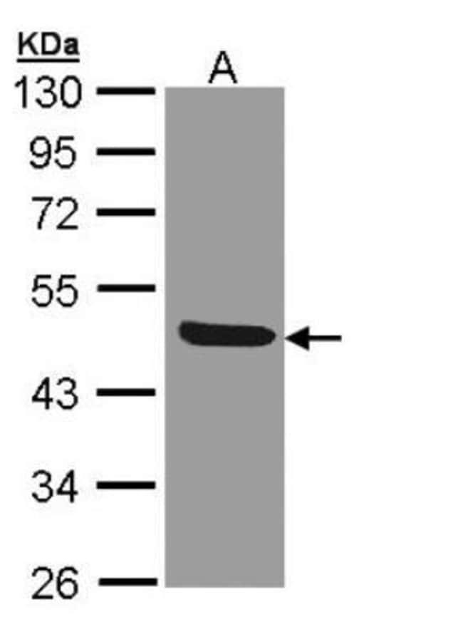 anti-IL-1 RII, Polyclonal, Novus Biologicals 0.1mg; Unlabeled:Life Sciences